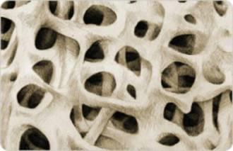 Osteoporosis test