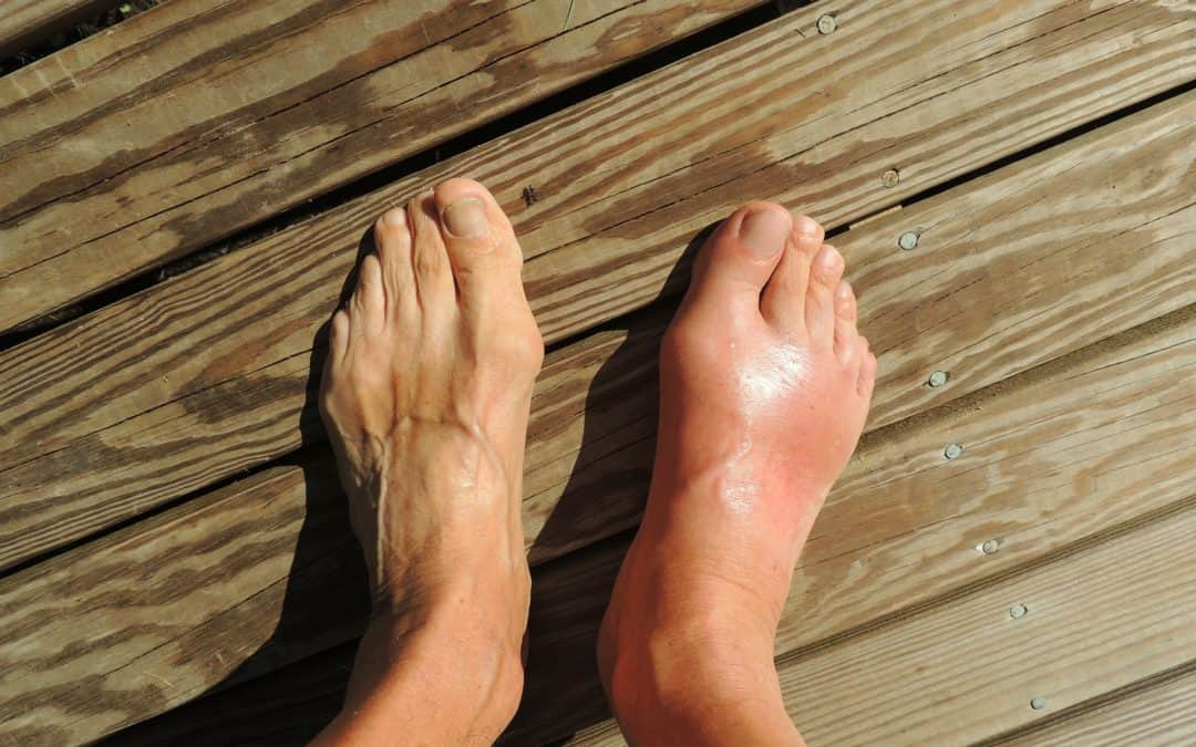5 Things to Avoid if You Have Gout