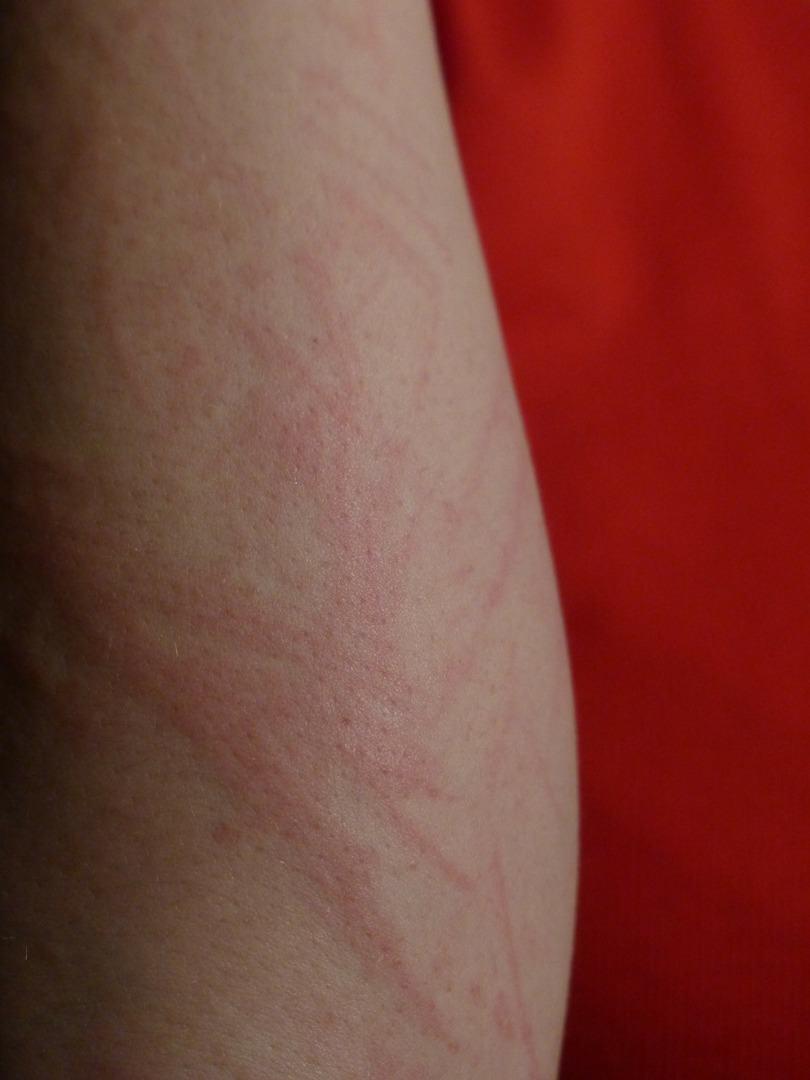 histamine Skin